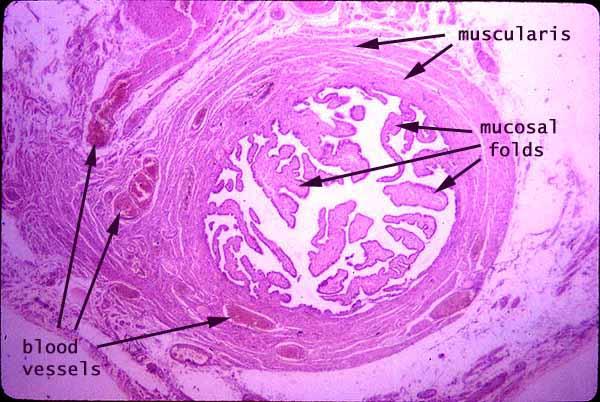 normal fallopian tube histology