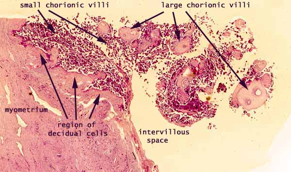 chorion histology related keywords chorion histology