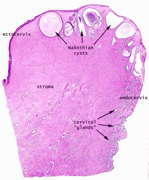 pathology outlines - nabothian cysts, Skeleton